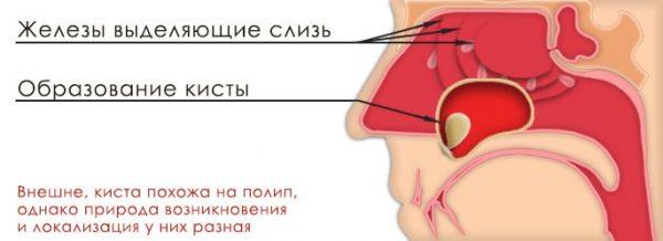 Удаление кисты гайморовой пазухи в ульяновске