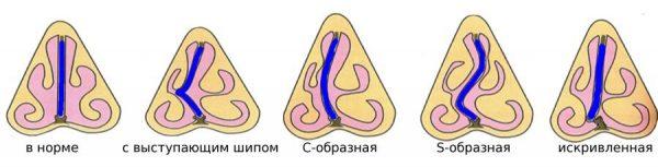 исправить перегородку носа в Ульяновске