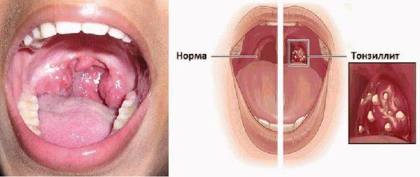 Лечение тонзиллита в Ульяновске